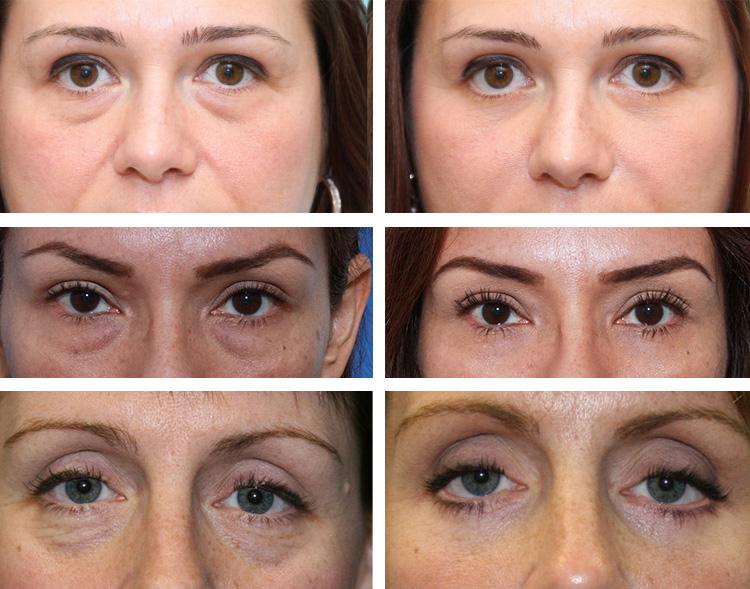 Лимфодренажный массаж лица - Фото до и после