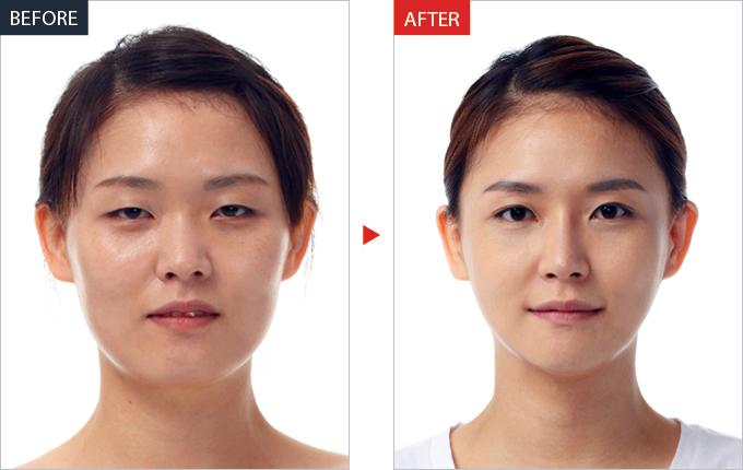 Фото до и после. Лимфодренажный массаж лица