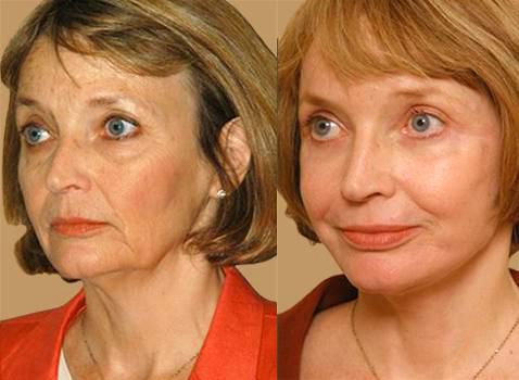 Вакуумный массаж лица фото до и после