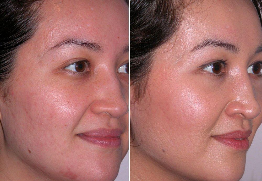 Микродермабразия лица - фото до и после