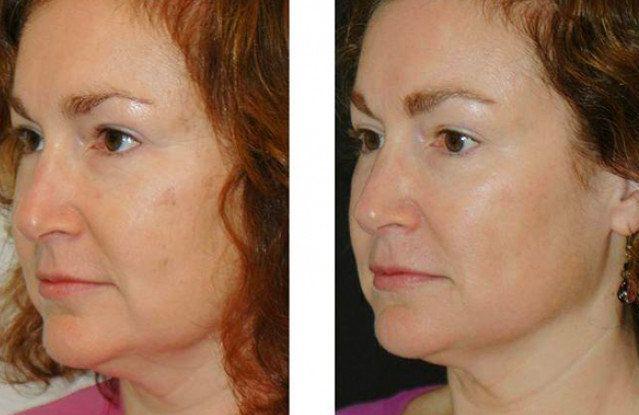 Скульптурный массаж лица - фото до и после