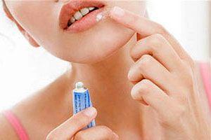 На фото: Лечение герпеса на губах