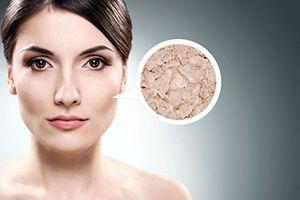 На фото: Маски для сухой кожи лица в домашних условиях
