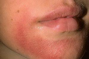 На фото: Лечение аллергического дерматита