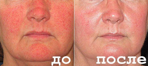 На фото: До и после лечения купероза в домашних условиях народными средствами