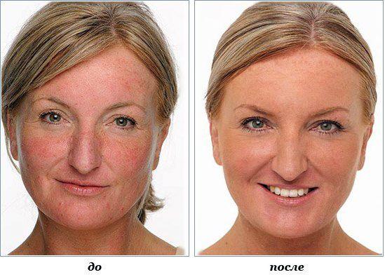 Фото до и после лечения купероза народными средствами