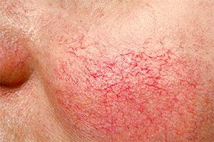 На фото: Причины купероза
