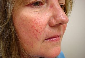 На фото: купероз на лице
