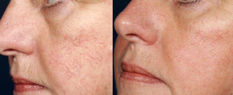 На фото: Лечение купероза до и после