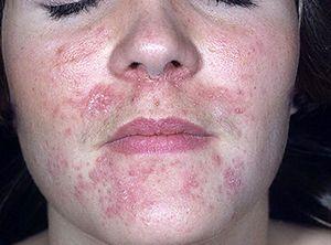 На фото: Пероральный дерматит на лице