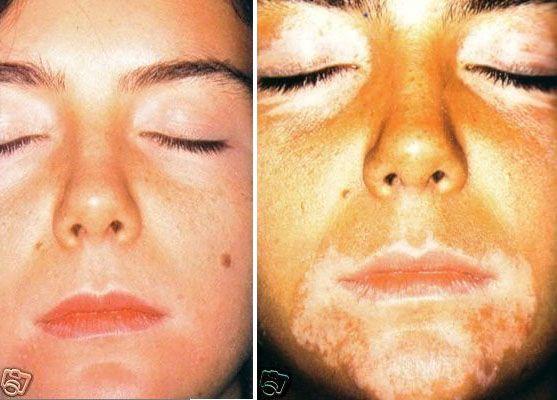 Фото лечения витилиго до и после