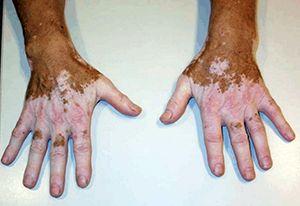 На фото: Симптомы Витилиго