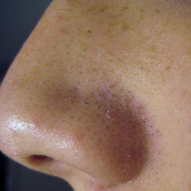 Как убрать черные точки с носа в домашних условиях